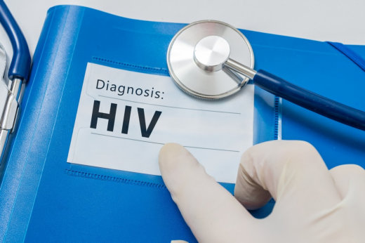 HIV and AIDS: Differences and Connection